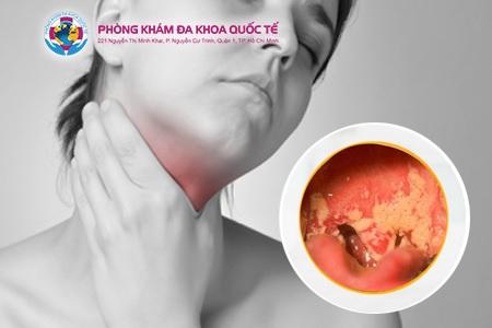 Hình ảnh bệnh lậu ở miệng họng