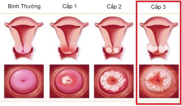 Viêm lộ tuyến cổ tử cung độ 3
