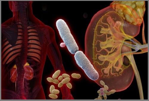nhiễm khuẩn đường tiết niệu
