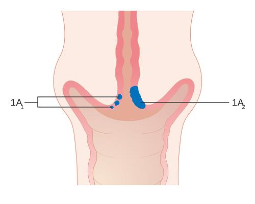 hình ảnh triệu chứng ung thư cổ tử cung giai đoạn đầu